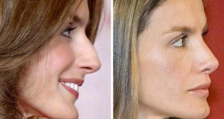 operacion nariz
