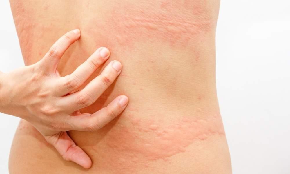 alergia menstruacion