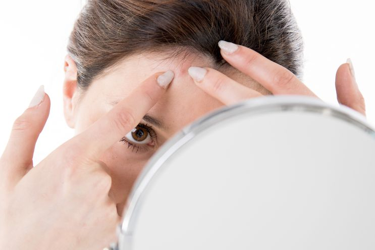 aparicion acne juvenil