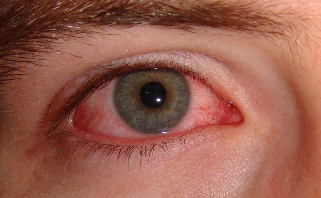 Conjuntivitis en los ojos