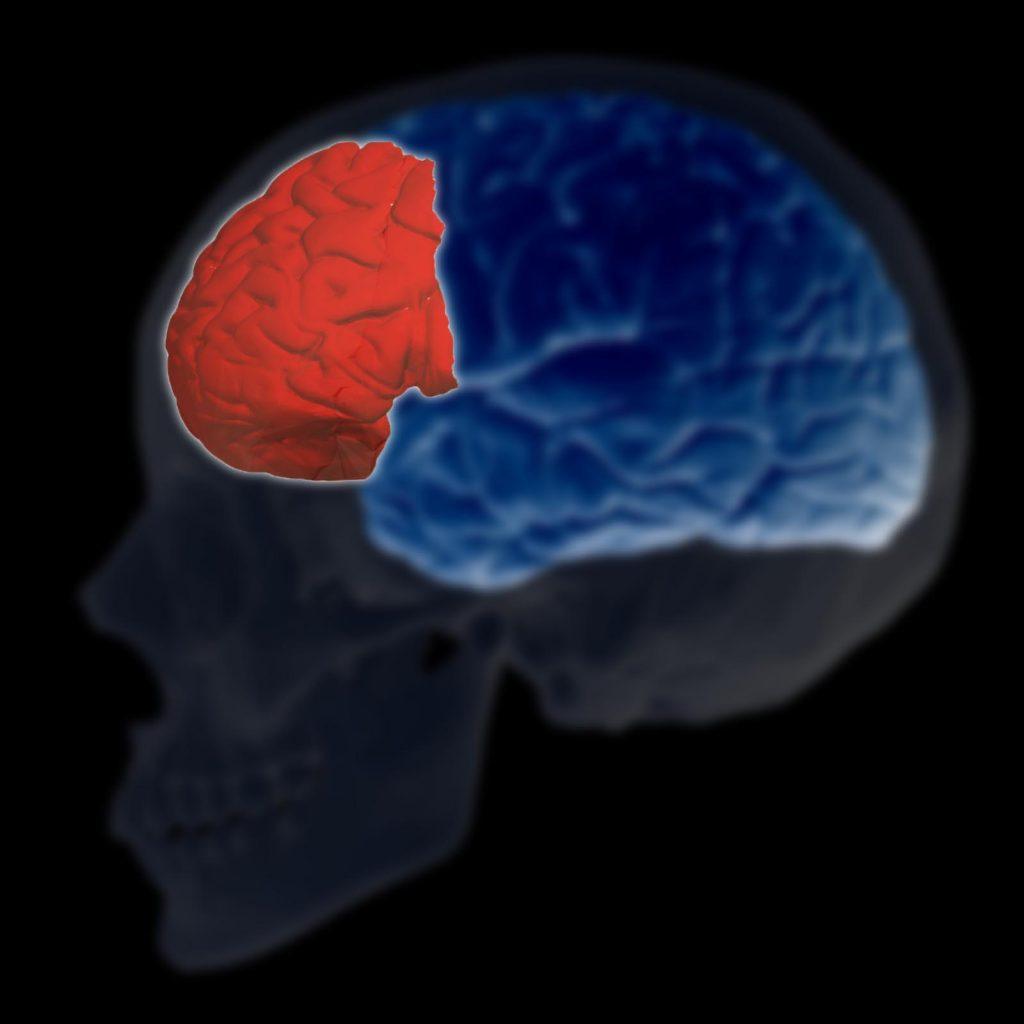 Reducción de la corteza cerebral