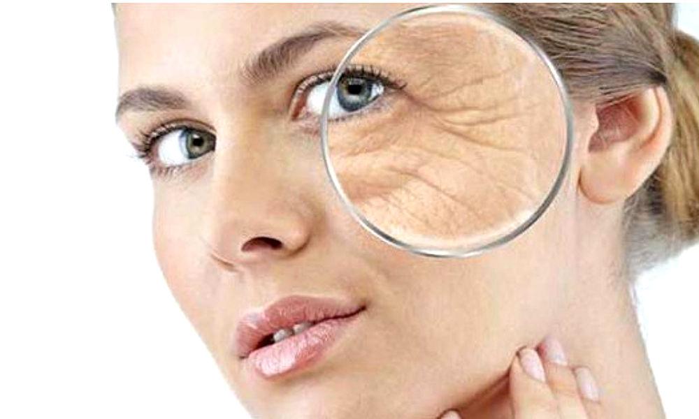 arrugas-envejecimiento-1