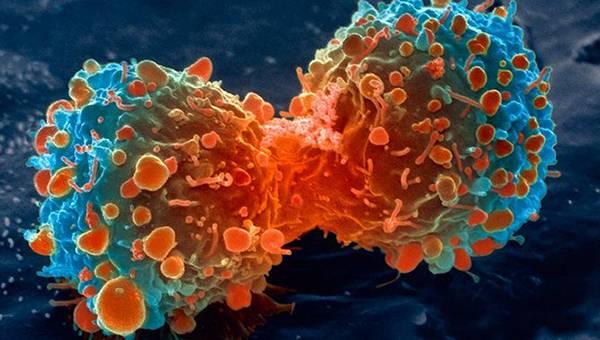cancer enfermedad
